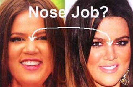 Khloe Kardashian nose job before and after