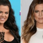 Khloe kardashian before and after alleged nose job plastic surgery
