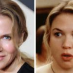 Renee Zellweger Before After 150x150