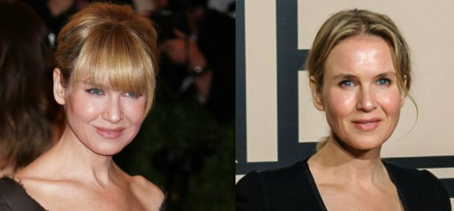 Renee Zellweger Before and After eyelids