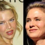 Renee Zellweger Botox Before After 150x150