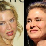 Renee-Zellweger-Botox-Before-After