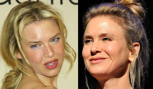 Renee Zellweger Botox Before After