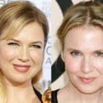 Renee Zellweger Plastic Surgery Before After 150x150