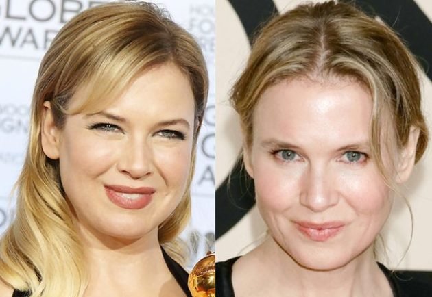Renee Zellweger Plastic Surgery Before After 630x434