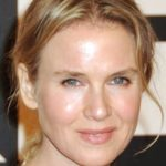 Renee Zellweger Plastic Surgery chin implant 150x150