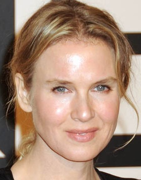 Renee Zellweger Plastic Surgery chin implant