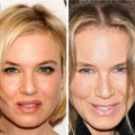 Renee-Zellweger-Plastic-Surgery-jaw line