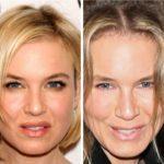 Renee Zellweger Plastic Surgery jaw line 150x150