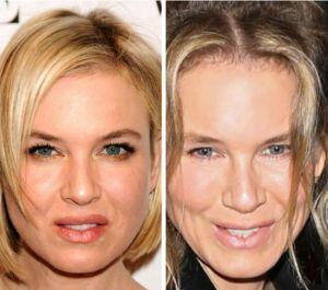 Renee Zellweger Plastic Surgery jaw line 300x265