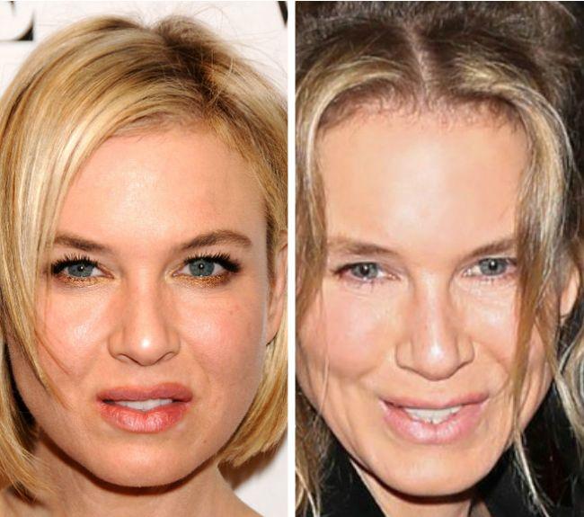 Renee Zellweger Plastic Surgery jaw line