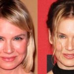 Renee Zellweger Plastic Surgery transformation 150x150