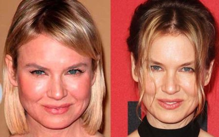 Renee Zellweger Plastic Surgery transformation