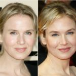 Renee Zellweger eyebrows Before After 150x150