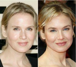 Renee Zellweger eyebrows Before After 300x264