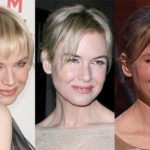 Renee Zellweger jaw line Before After 150x150