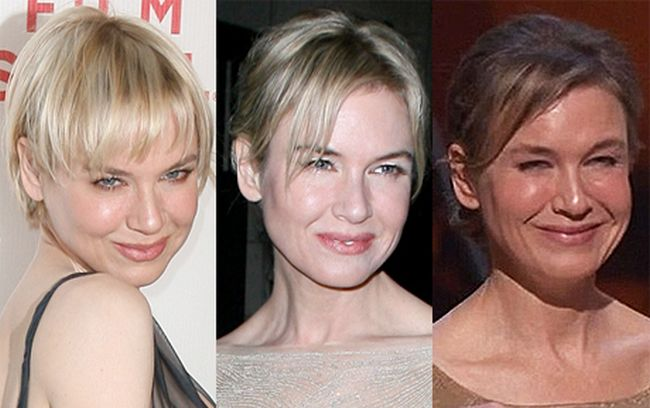 Renee Zellweger jaw line Before After