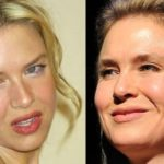Renee Zellweger Before And After Plastic Surgery 150x150