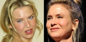 Renee Zellweger Before And After Plastic Surgery 300x146