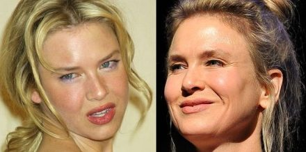 What Experts And Others Have to Say About Renee Zellweger Plastic Surgery?