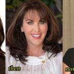 Robin McGraw before and after plastic surgery 150x150