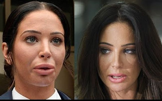 Tulisa Paulinea Contostavlos lip implants
