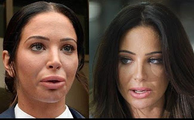 Tulisa Paulinea Contostavlos lip implants