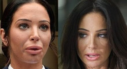 Tulisa plastic surgery before & after: how much has she had done?