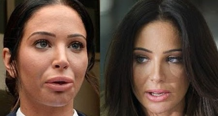 Tulisa Plastic Surgery Gone Wrong