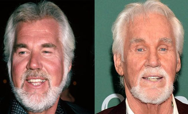 What happened to Kenny Roger before after
