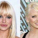 anna faris plastic surgery pictures