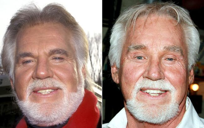 kenny rogers plastic surgery disastres