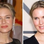 renee zellweger surgery before after 150x150