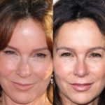 Jennifer Grey Lip Implants 150x150