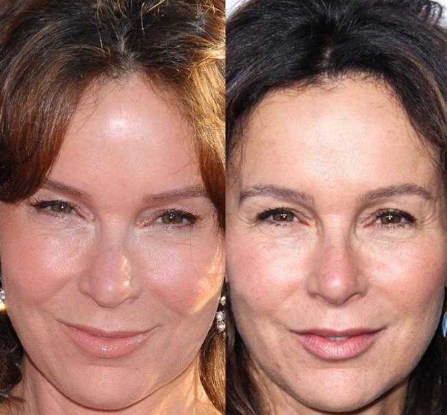 Jennifer Grey Lip Implants