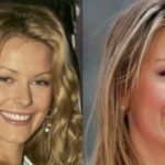 Jennifer Hawkins Before And After Plastic Surgery 150x150