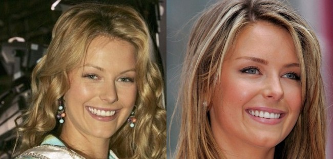 Jennifer Hawkins Before And After Plastic Surgery