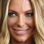 Jennifer Hawkins Chin Surgery 150x150