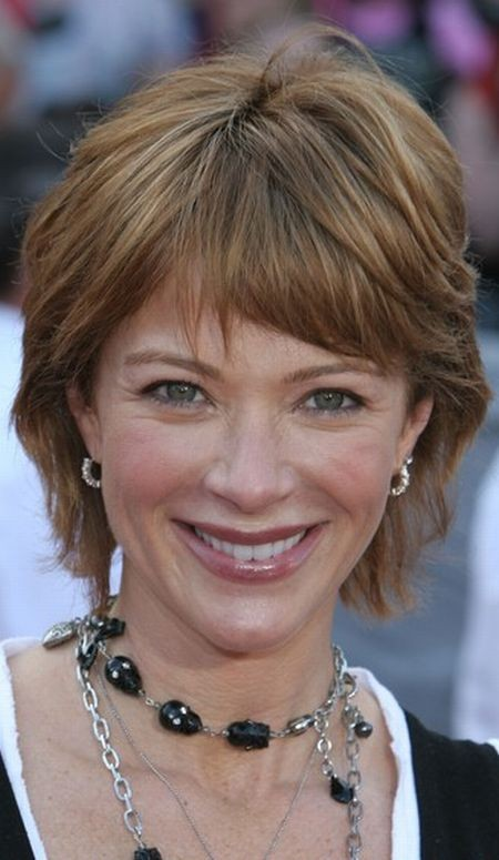 Lauren Holly Botox injections