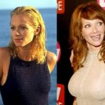 Lauren Holly Breast augmentation