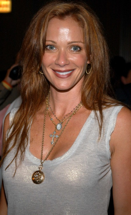 Lauren Holly Plastic Surgery Botox injections