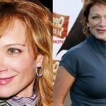 Lauren Holly Plastic Surgery before after 150x150