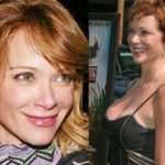 Lauren Holly Plastic Surgery before after lip and breast