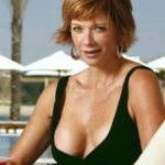 Lauren Holly celebsurgery