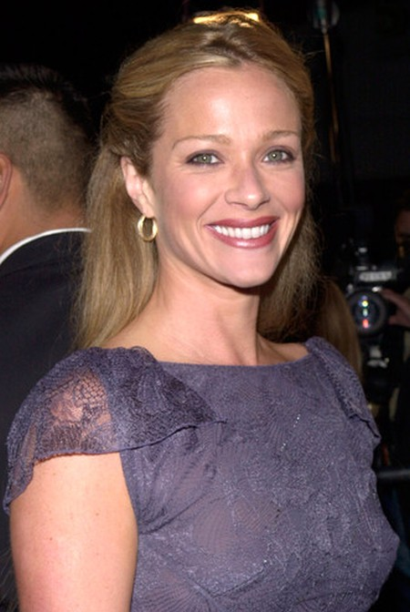 Lauren Holly lip implants