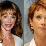 Lauren Holly nose work 150x150