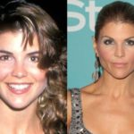 Lori Loughlin Before And After Plastic Surgery 150x150