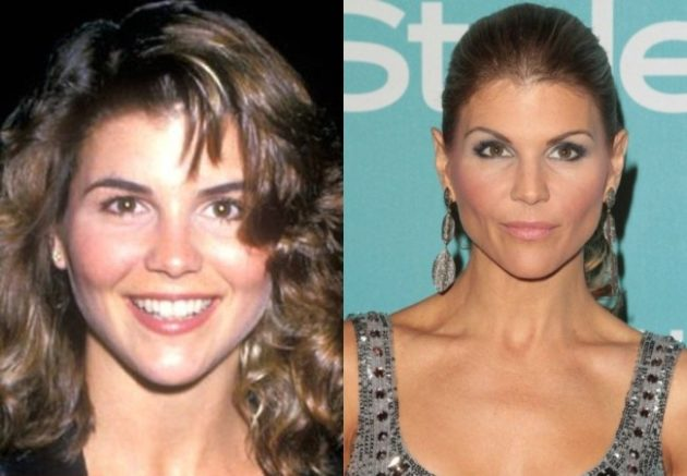 Lori Loughlin Before And After Plastic Surgery 630x437