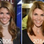 Lori Loughlin Plastic Surgery 2006 2014 150x150