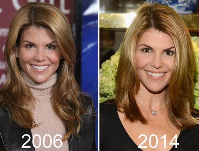 Lori Loughlin Plastic Surgery 2006 2014